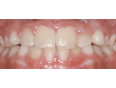 Under Bite Phase I Treatment